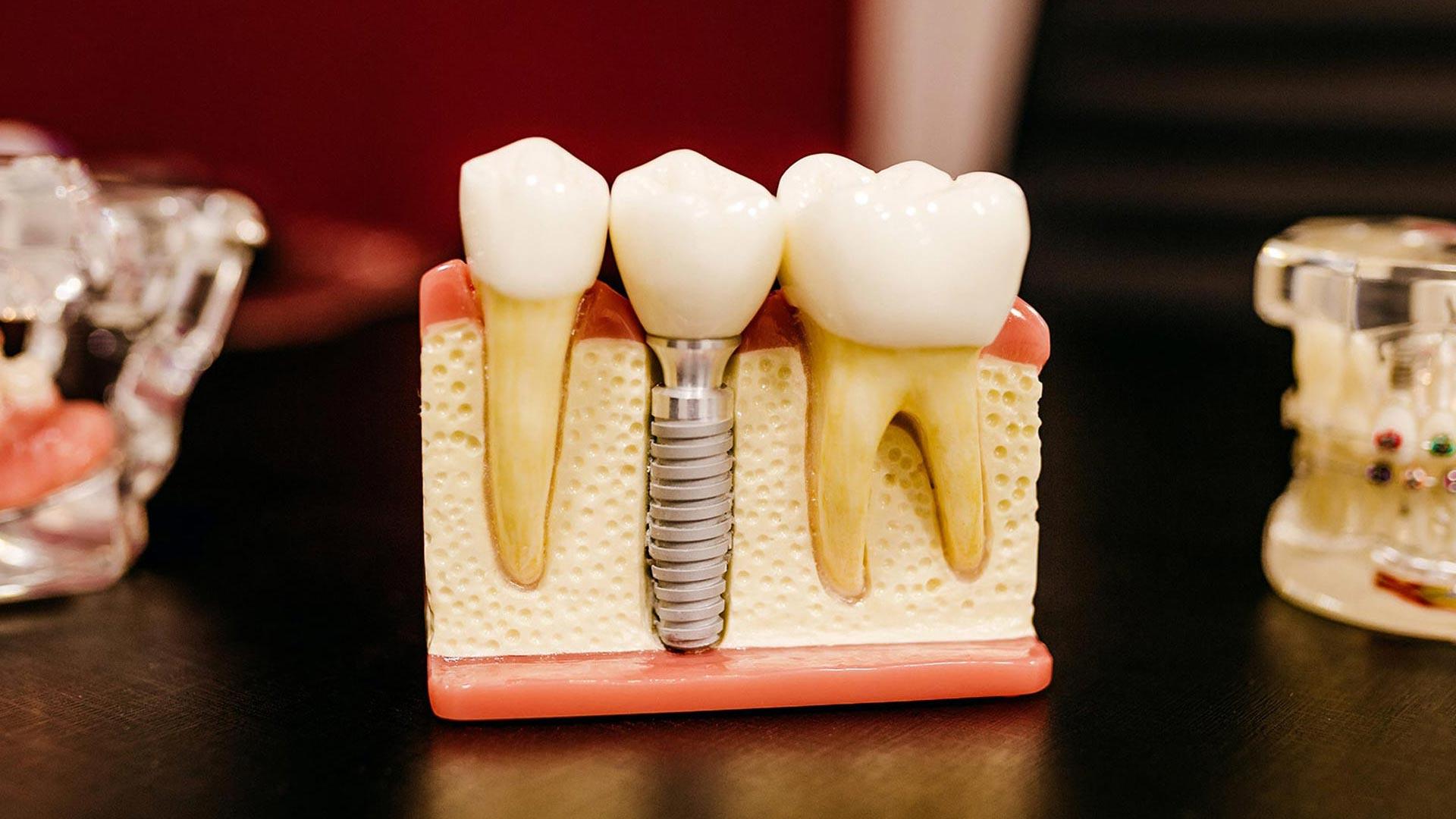 McKenzie dental implants